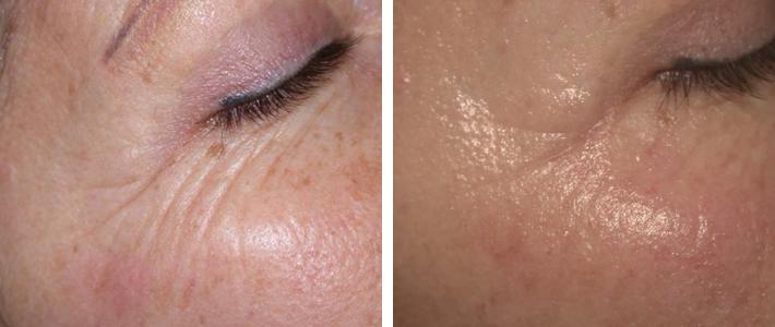 Reducción de arrugas y líneas de expresión