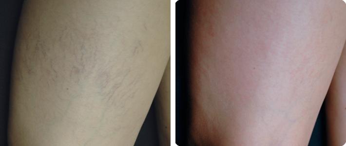 Varices y arañas vasculares en las piernas